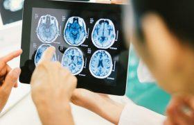 Ученый Конрад Бейройтер рассказывает как минимизировать риск заболеть Альцгеймером