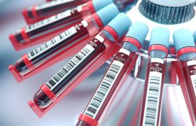 Анализ крови на бета-амилоид поможет снизить смертность от сердечно-сосудистых заболеваний
