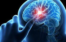 Справиться с последствиями инсульта поможет новый агент