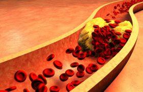 8 эффективных рецептов для профилактики и лечения атеросклероза