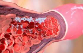 Основные симптомы тромбоза: не пропустите