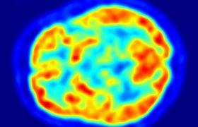 Ученые научились определять болезнь Альцгеймера до появления первых симптомов