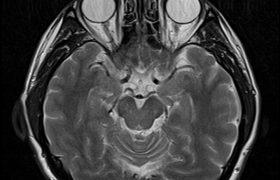 Ученые нашли способ сохранить память после черепно-мозговой травмы