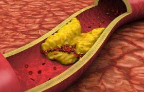 Назван способ очистить сосуды от избыточного холестерина без лекарств
