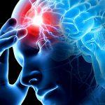 Медики утверждают, что инсульт может произойти у каждого человека