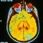 Для болезни Альцгеймера могут предложить новую диагностику