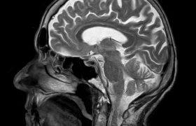 Лечение болезни Паркинсона станет проще с новой методикой МРТ