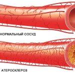 Эффективные натуральные средства для укрепления сосудов и профилактики атеросклероза