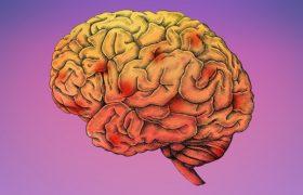 Тест, с помощью которого можно проверить риск Альцгеймера