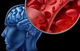 Что необходимо сделать, чтобы улучшить мозговое кровообращение