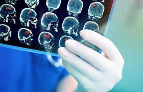 Медики выяснили, какие продукты повышают риск инсульта