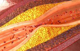 3 рецепта для очищения сосудов от атеросклеротических бляшек и тромбов