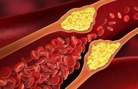 Исследователи поняли, как предотвратить атеросклероз сосудов