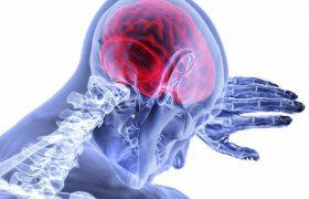 Новый механизм лечения инсульта доказал свою эффективность