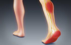 Тромбы: 8 признаков, что они могут быть в нашем теле