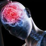 5 самых больших привычек, вызывающих повреждения мозга