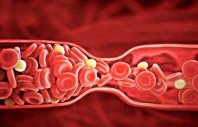 Продукты, провоцирующие образование тромбов