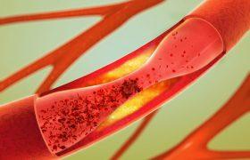 Названа новая причина образования тромбов при коронавирусе