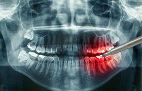 Рентген зубов в помощь стоматологу