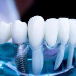 Имплантация зубов: где правда, а где ложь?