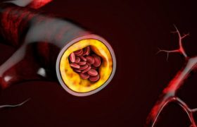 Назван способ очищения сосудов от холестерина «без лекарств»
