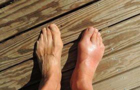Названы типичные симптомы развития подагры