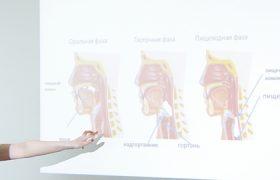 Определены необычные признаки приближающегося инсульта