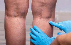 Флеболог перечислил признаки венозного тромбоза