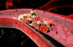 Что делает опасными тромбы и каковы их признаки?