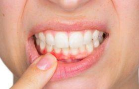 Мукозит и периимплантит после имплантации зубов