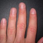Вид ногтей может измениться из-за болезней сердца, почек и других органов