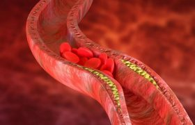 Как заметить надвигающийся тромбоз мозга?
