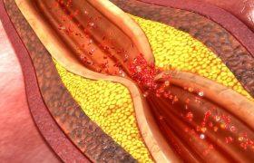 Отчего образуются холестериновые бляшки и как от них избавиться