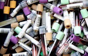 Обладатели одной группы крови имеют повышенный риск тромбоза