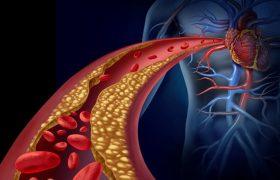 10 натуральных рецептов для профилактики атеросклероза, оздоровления и очищения сосудов