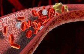 Названы способы снизить риск возникновения тромбов