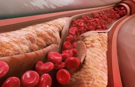 Названы тревожные признаки атеросклероза