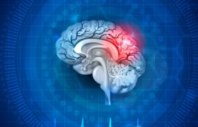 Названы тревожные признаки болезней головного мозга