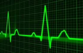Ранние признаки инфаркта, которые важно вовремя заметить